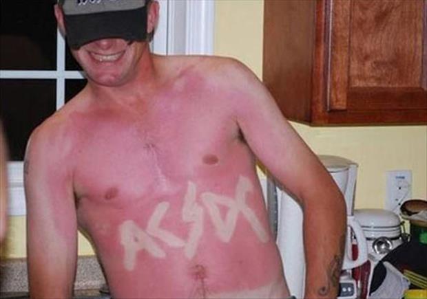 sunburn pictures, dumpaday (11)