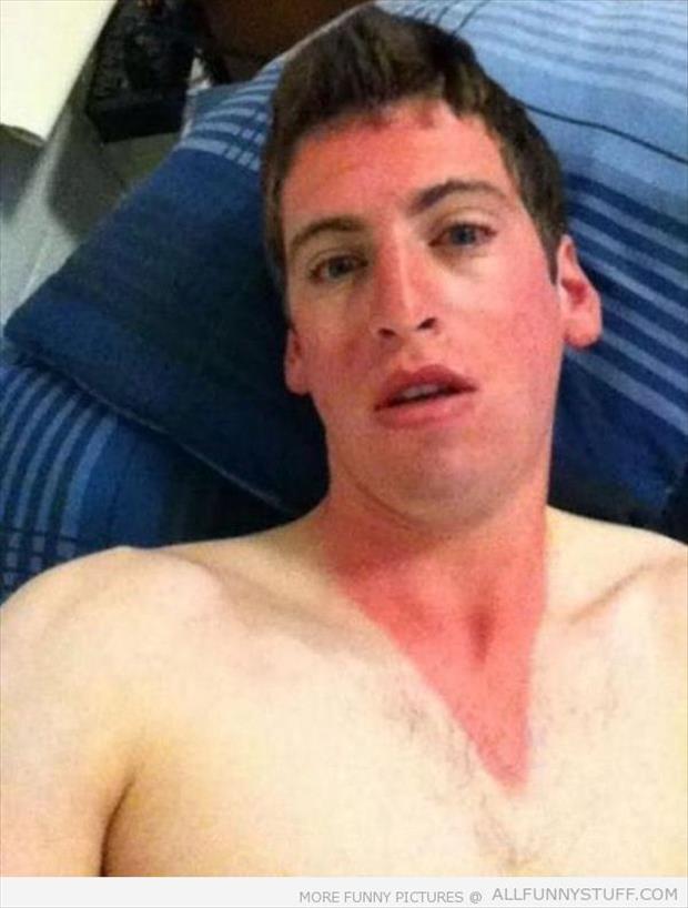 sunburn pictures, dumpaday (12)