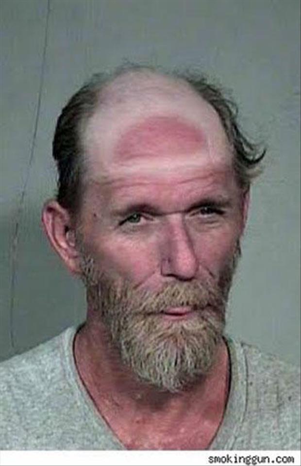 sunburn pictures, dumpaday (17)
