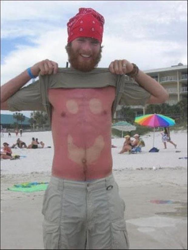 sunburn pictures, dumpaday (19)