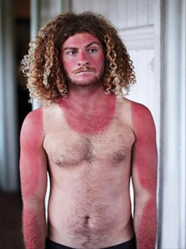 sunburn pictures, dumpaday (2)