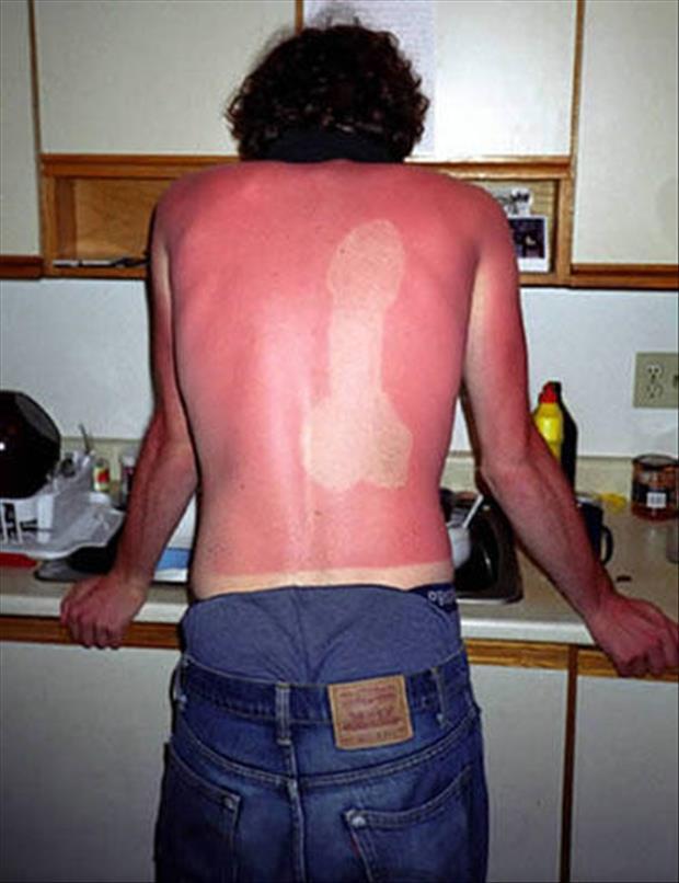 sunburn pictures, dumpaday (20)