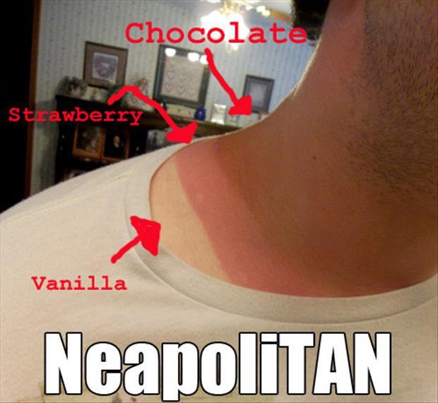 sunburn pictures, dumpaday (3)