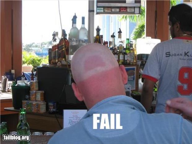 sunburn pictures, dumpaday (4)