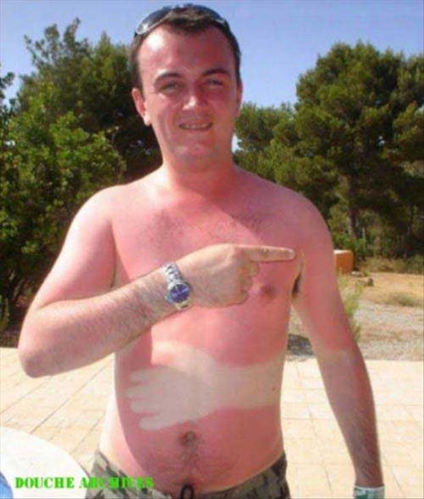 sunburn pictures, dumpaday (7)